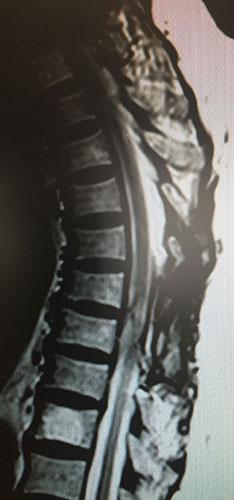 Εικόνα μαγνητικής τομογραφίας μετά τη χειρουργική αφαίρεση του μηνιγγιώματος του νωτιαίου μυελού που απεικονίζεται στις προηγούμενες εικόνες.