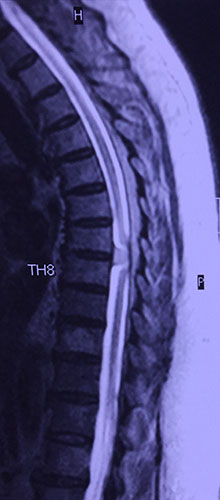 Εικόνα μαγνητικής τομογραφίας ασθενούς 82 ετών με ενδοσκληρίδιο-εξωμυελικό όγκο (μηνιγγίωμα βαθμού Ι κατά WHO)