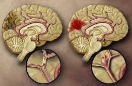 Απεικόνιση αγγειακών εγκεφαλικών επεισοδίων