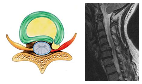 Απεικόνιση συμπτωμάτων αυχενικής δισκοκήλης