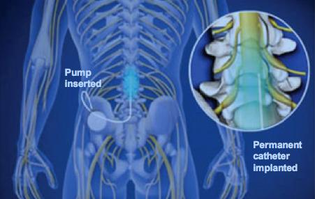 Απεικόνιση ενδορραχιαίας έγχυσης φαρμάκων