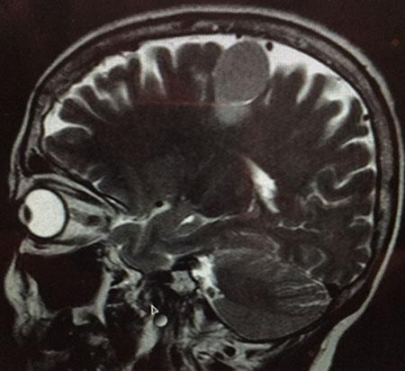 Μηνιγγίωμα εγκεφάλου στο αριστερό εγκεφαλικό ημισφαίριο σε ασθενή 70 ετών. [Εικόνα μαγνητικής τομογραφίας από το προσωπικό μου αρχείο].