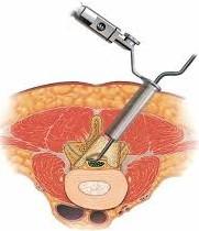 ελάχιστα επεμβατική χειρουργική επέμβαση